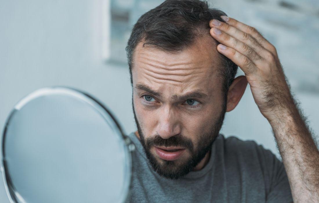 Can Hemp Seed Oil Help With Hair Loss?